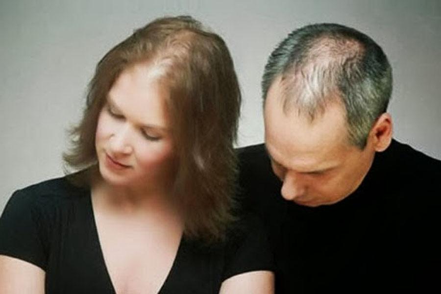 Queda de cabelo e calvície - Saiba a quantidade necessária de lavagens de cabelo por semana